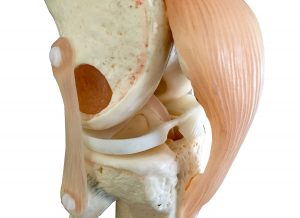 Complications After Knee Arthroscopy