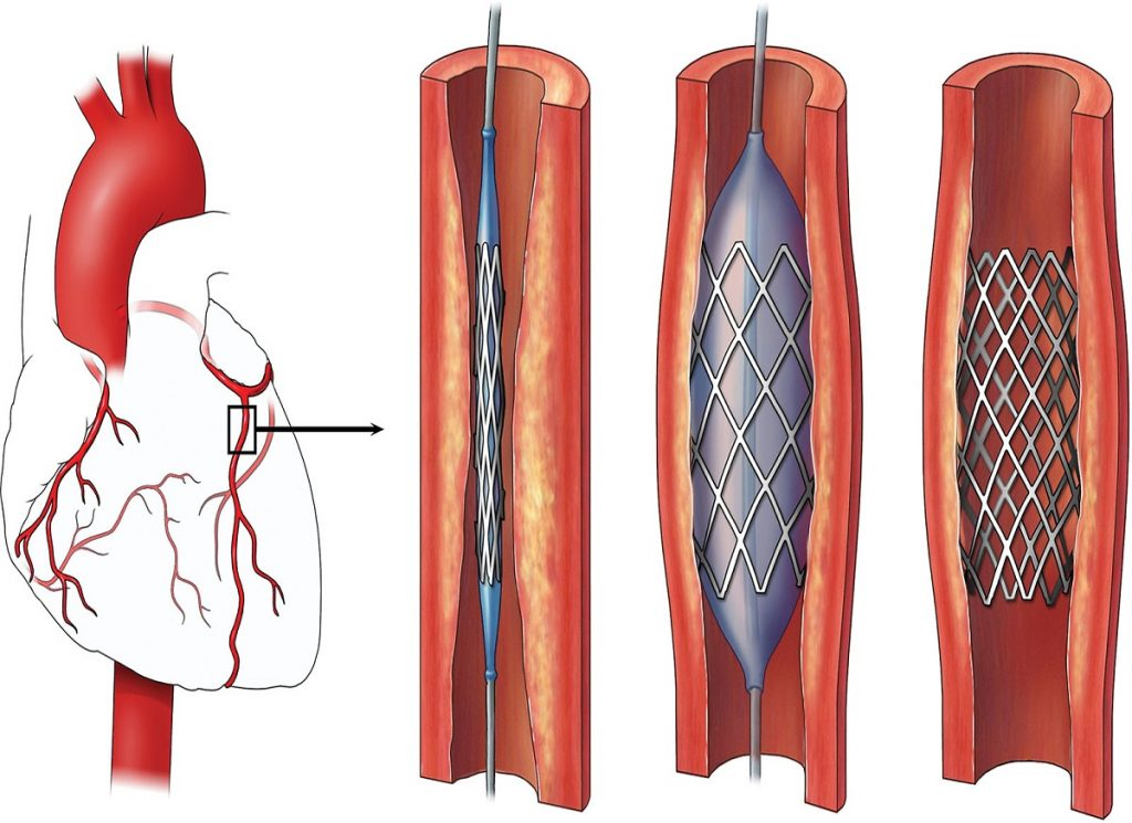 Complete Introduction of Angioplasty
