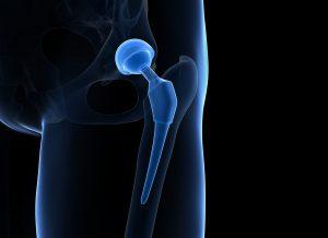 Operational Procedure for HIP Arthroplasty