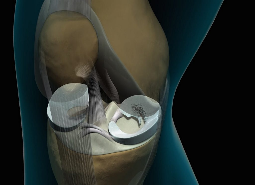 What is the recovery like after knee arthroscopy?