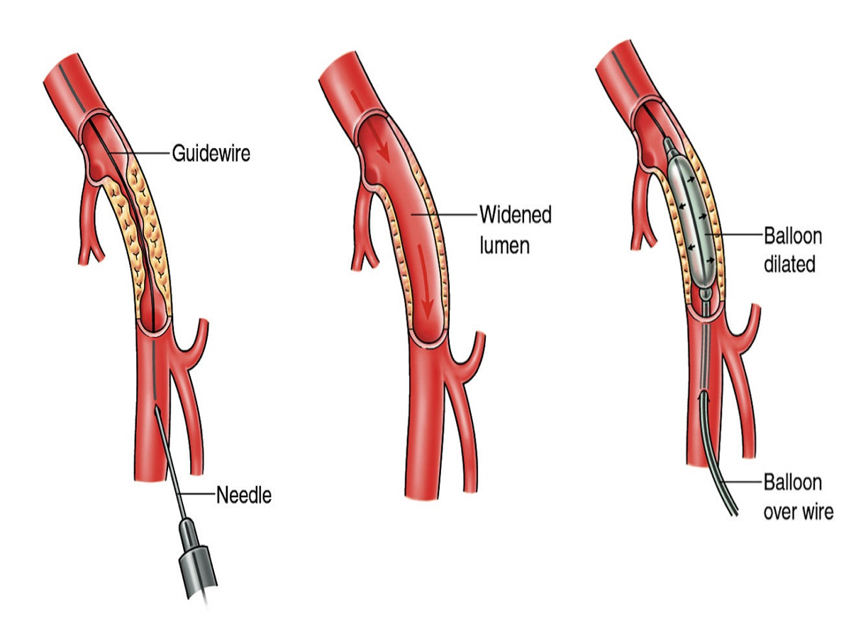 procedure-of-coronary-angioplasty