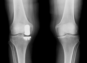 Partial knee Replacement procedure