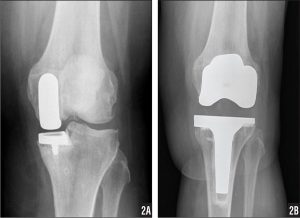 Unicompartmental Knee Arthroplasty