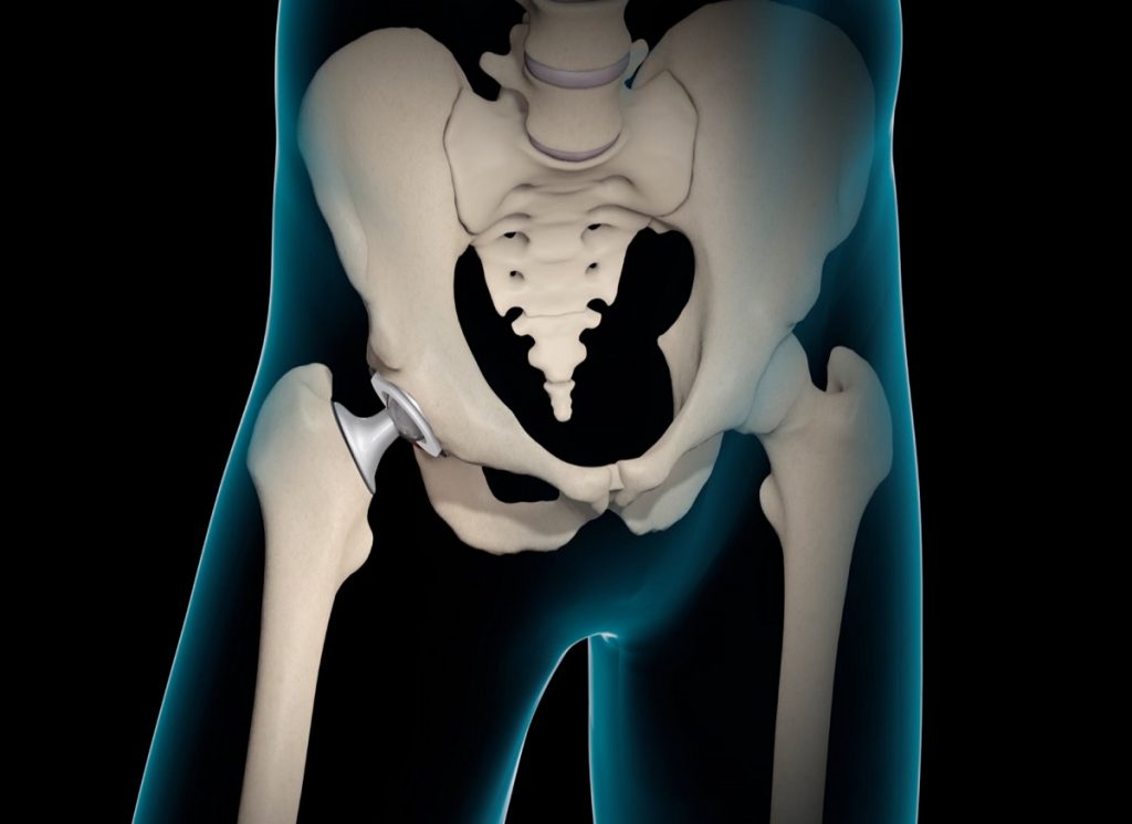 Risk and complications related to Hip Replacement Surgery