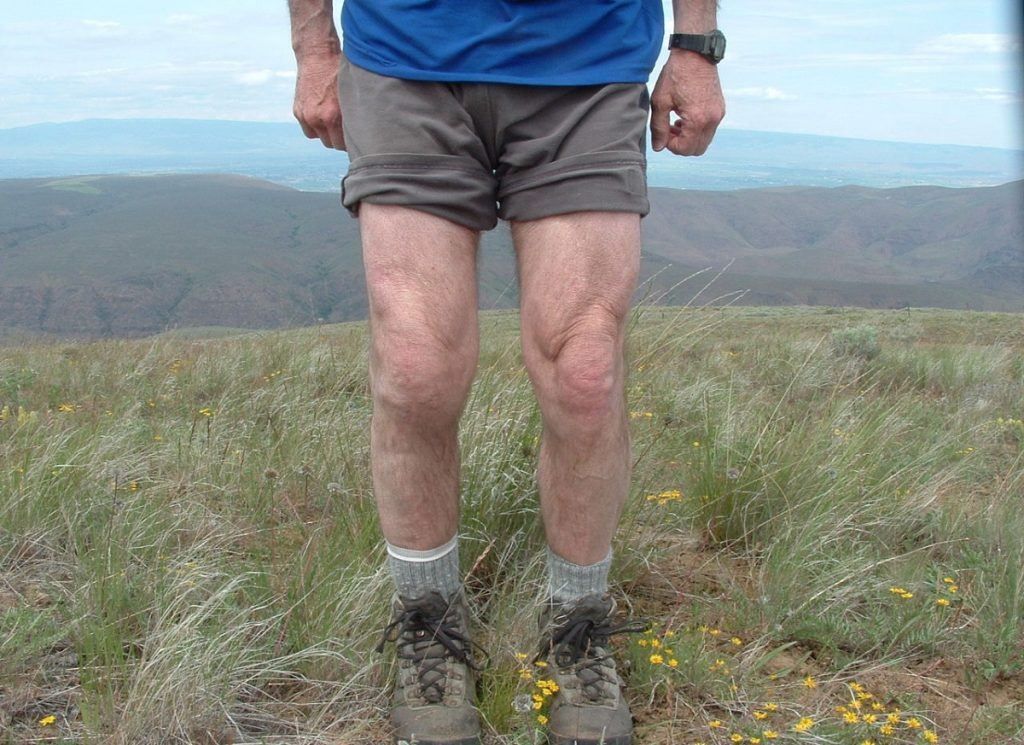 What is involved in the recovery from total knee replacement surgery?