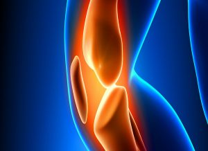 What are the risks of total knee replacement?
