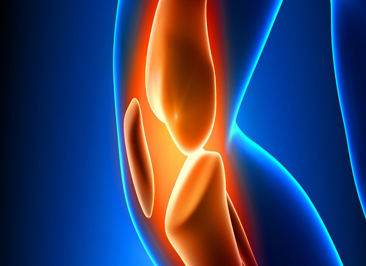 total knee replacement risk