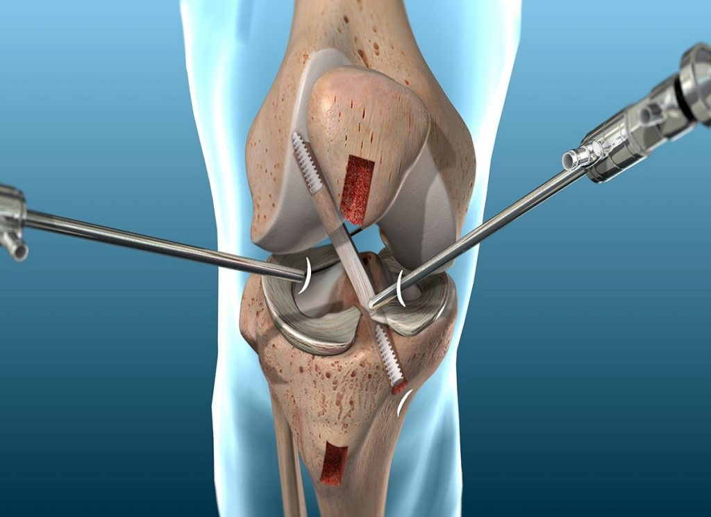 What is Anterior Cruciate Ligament Reconstruction (ACL Reconstruction)?