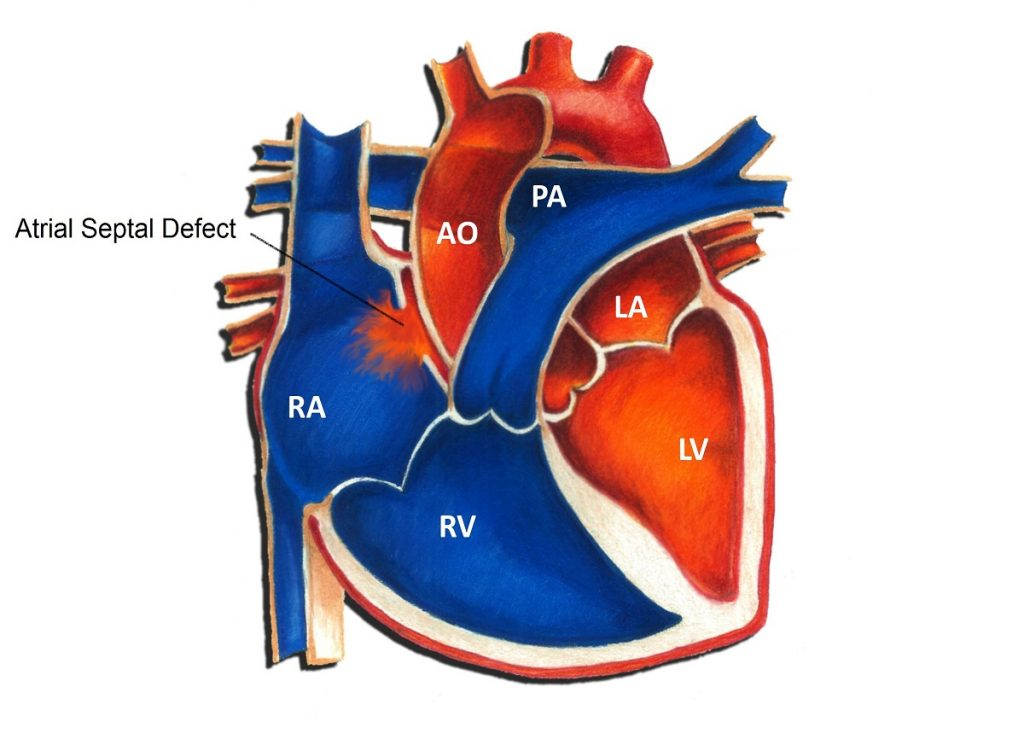 What is Atrial Septal Defect?