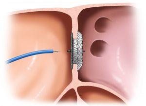 Diagnosis of Atrial Septal Defect