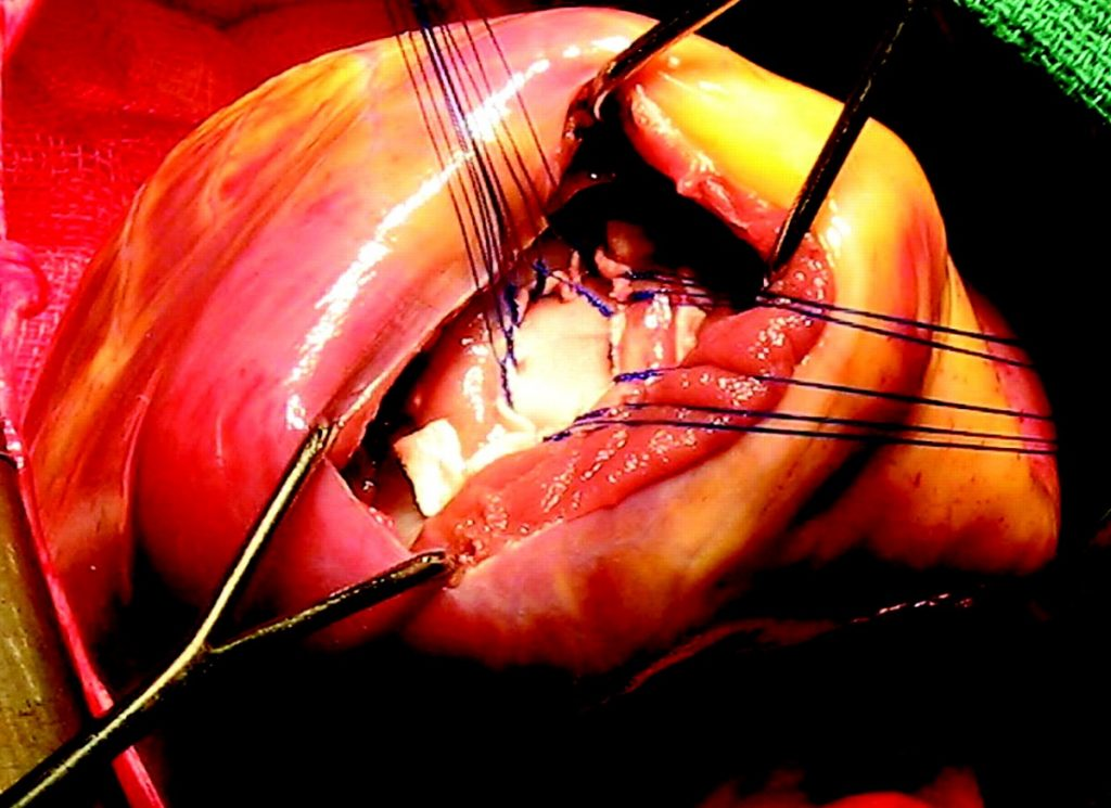 What is a Ventricular Septal Defect