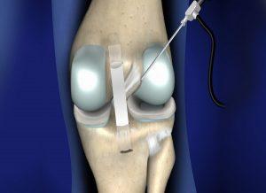 posterior cruciate ligament
