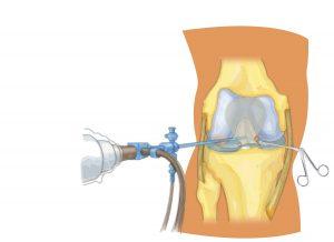 Knee Arthroscopy Reason, Procedure and Requirement