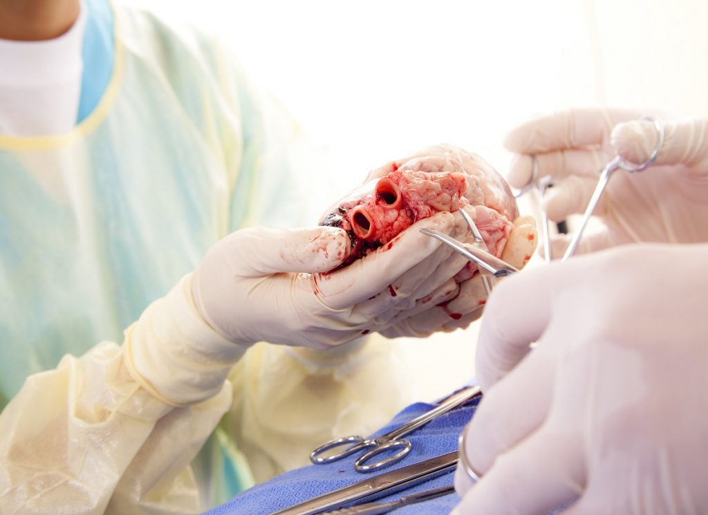 Overview  – Heart Transplant Surgery