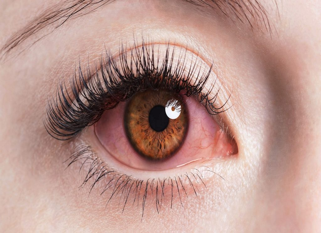 What Makes Eyes Appear Red and How to Treat the Problem?